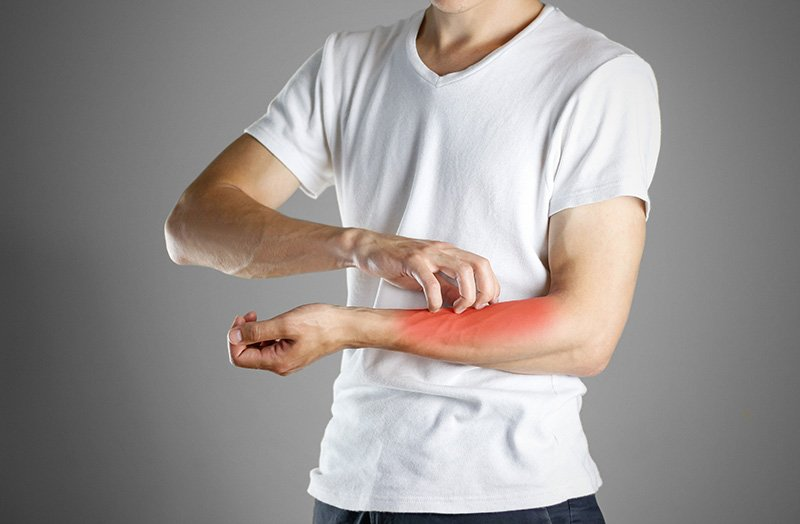 Flea bite symptoms in humans