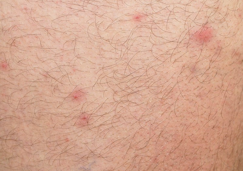 Flea bites close up