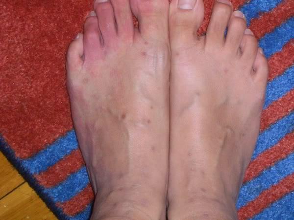 Loppebid billeder af fødder