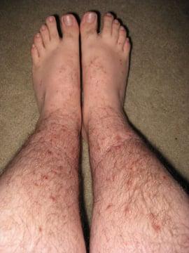 flea bites legs feet