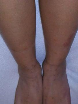 flea bites legs