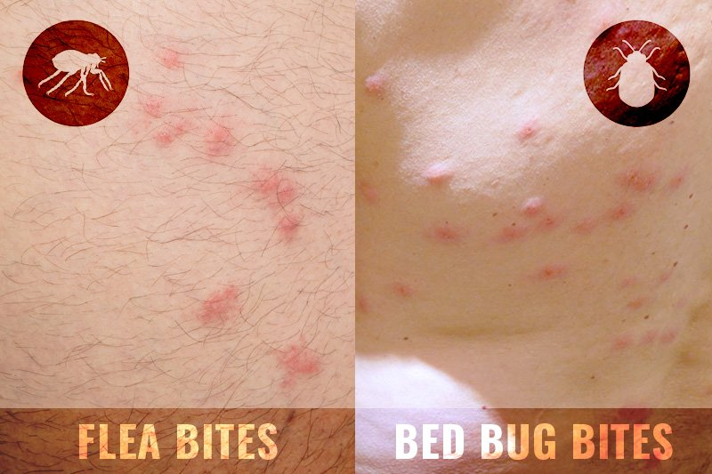 Flea bite and bed bug bite comparison