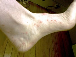Sand Flea Bites on Foot