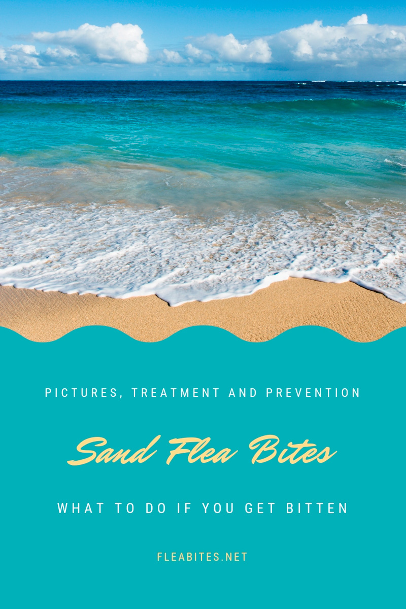 What to do if you get bitten by sand fleas