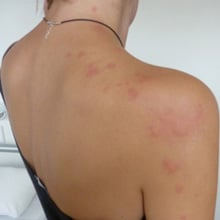 what bit me identify different bug bites and insect bites. Black Bedroom Furniture Sets. Home Design Ideas