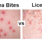 Flea Bites vs Lice – How Do You Tell Them Apart?