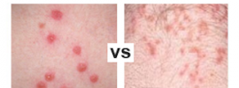 Flea Bites vs Lice – How Do You Tell Them Apart?