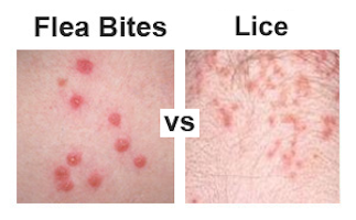 Flea Bites Vs Lice How Do You Tell Them Apart
