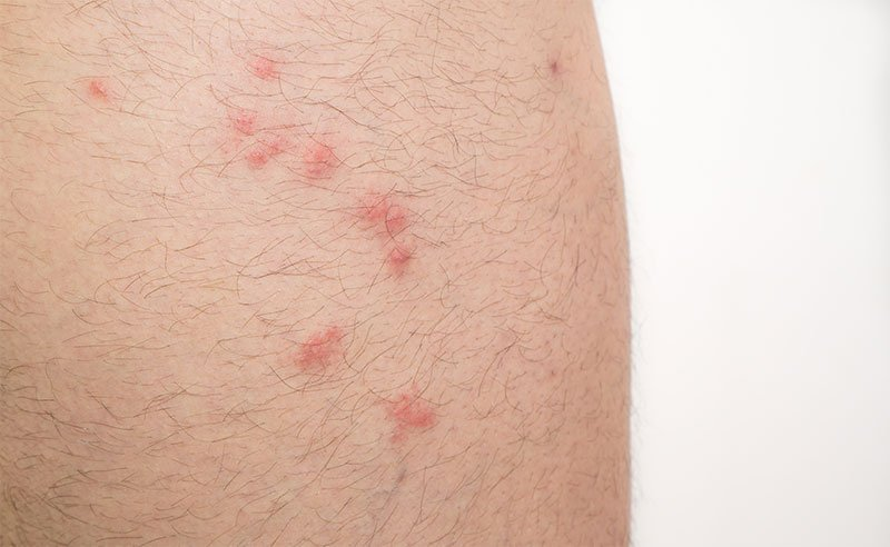Flea bites on skin
