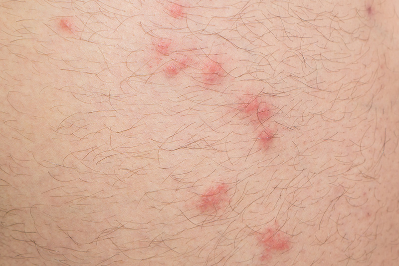 Multiple human flea bites on skin